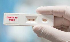Δωρεάν εξετάσεις αντισωμάτων για κορωνοϊό  στα στελέχη των Σωμάτων Ασφαλείας